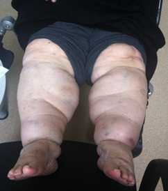 Aşırı Kilolu Bir Lenfdem Hastası