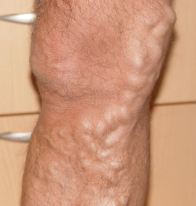 Erkek hastada yüzeyel toplar, damarda ilerlemiş varis